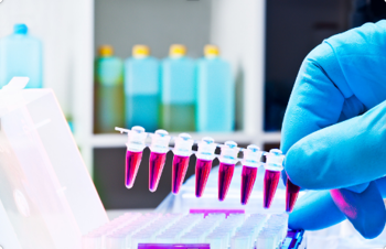 PCR (DNA Amplification)